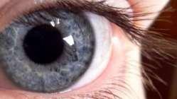 Şeker göze zarar veriyor